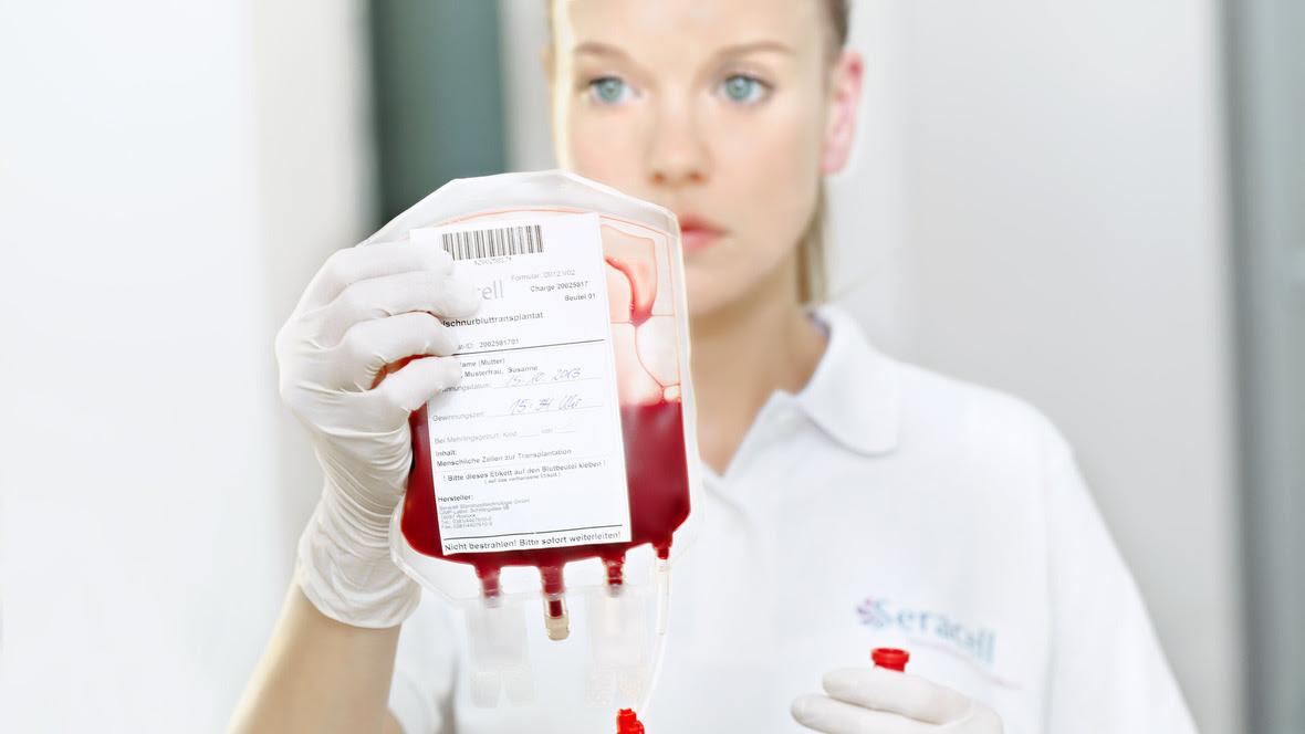 transplant-celule-stem1