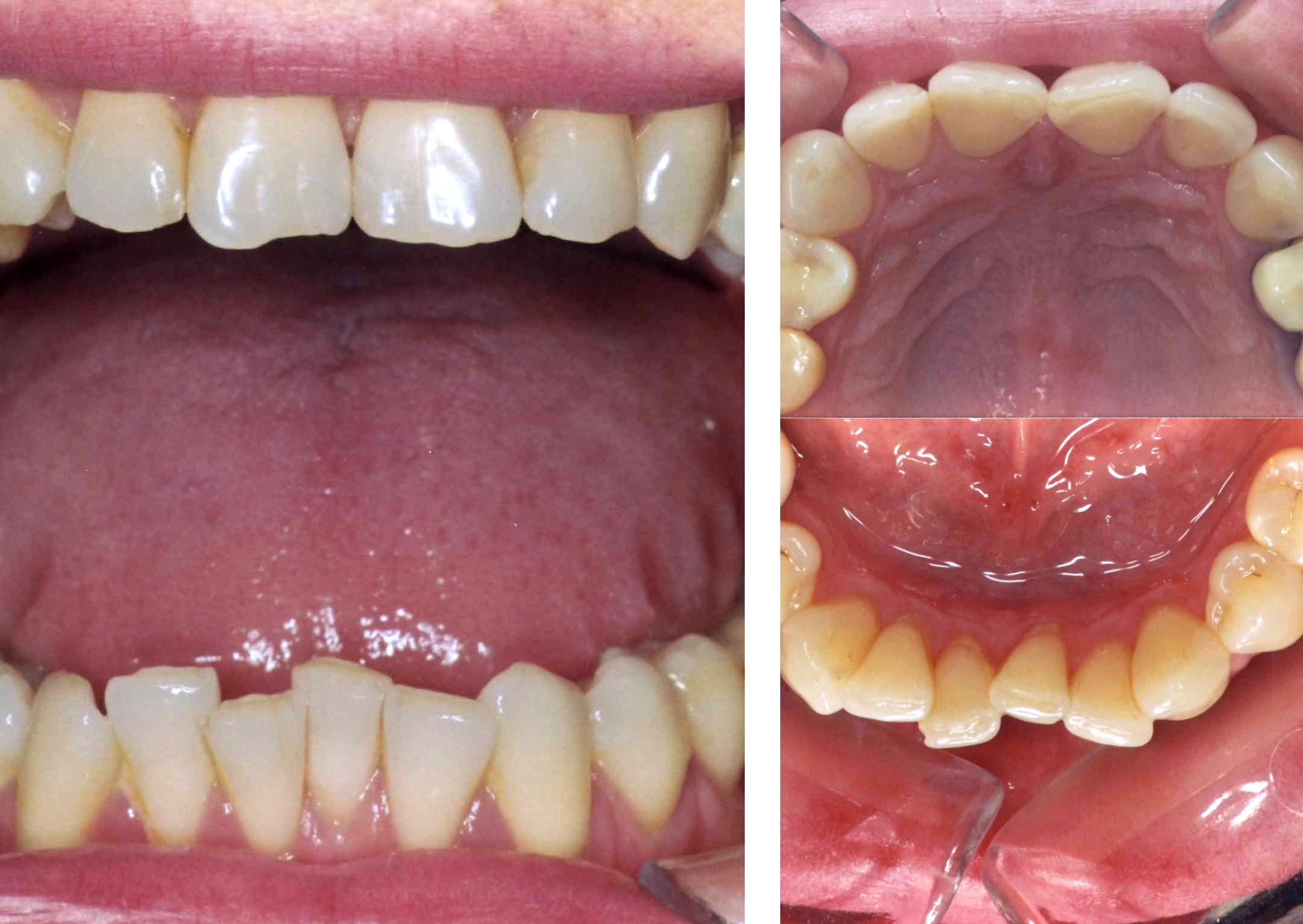 foto dosar aparat dentar