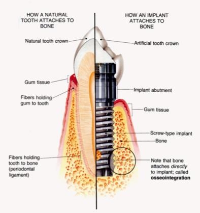 sectiune implant dentar