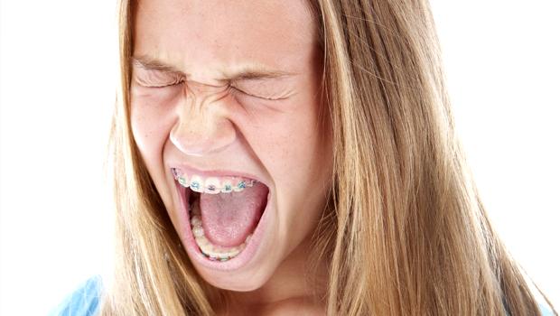 femeie aparat dentar durere