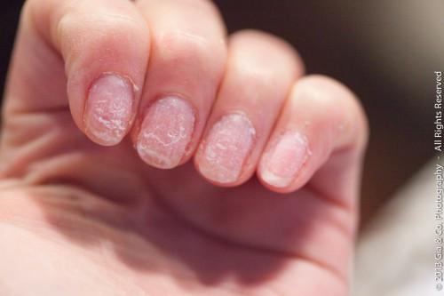 unghii deteriorate dupa gel