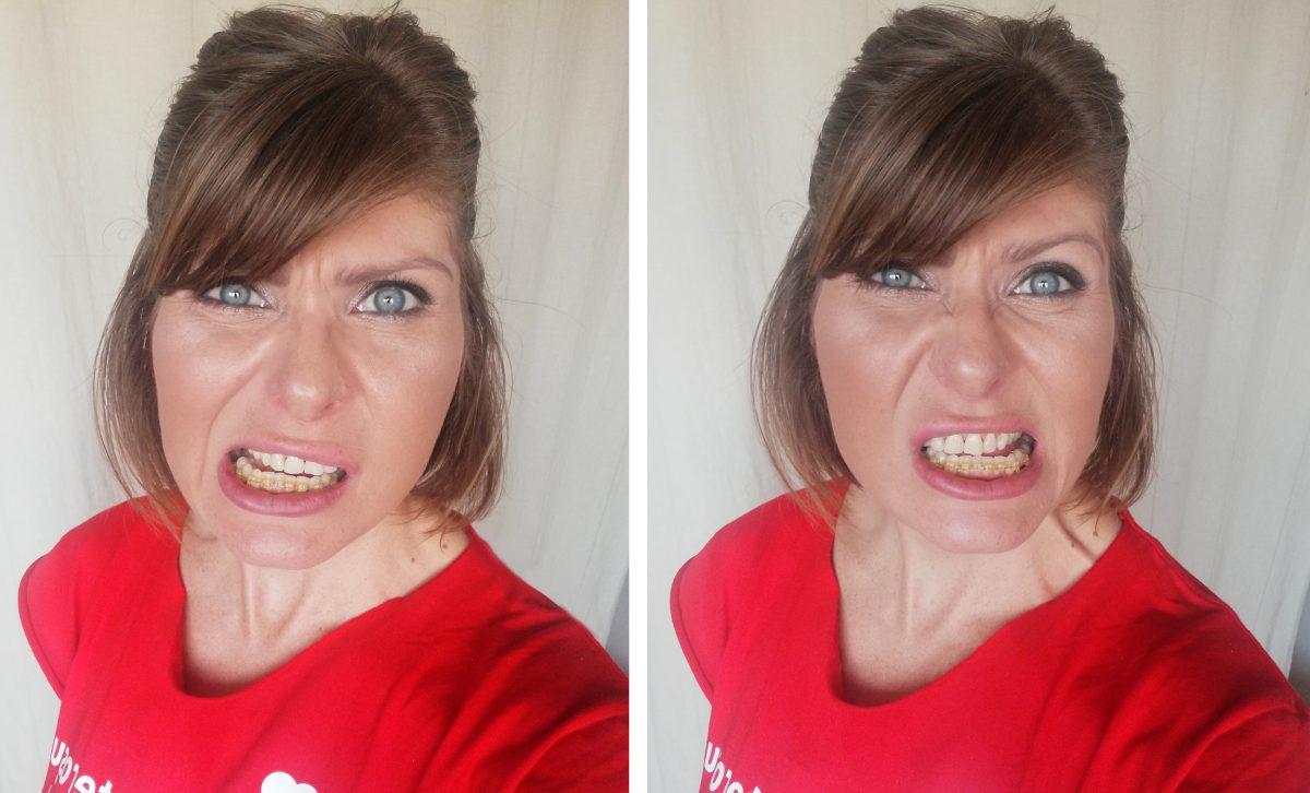 rezultat albire dentara dupa o saptamana