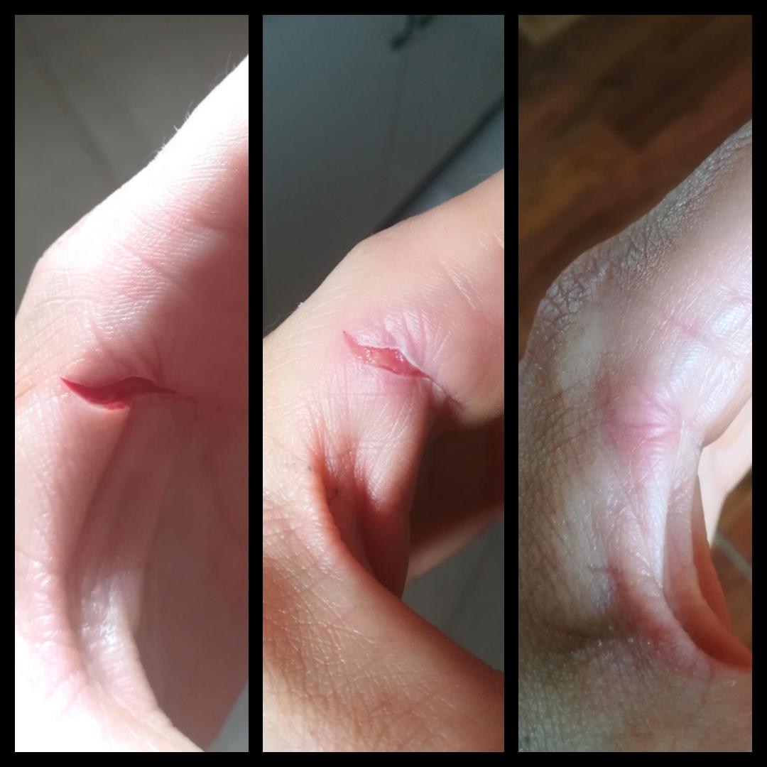 cicatrice taietura raniseptol