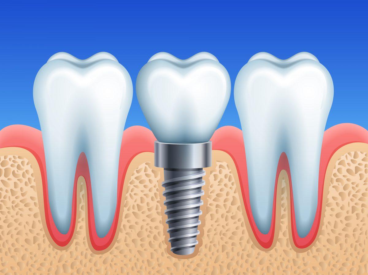 implant dentar riscuri pierdere sfaturi