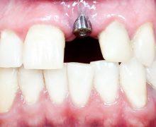 Implantul dentar: o modă justificată, dar te ține viața toată?