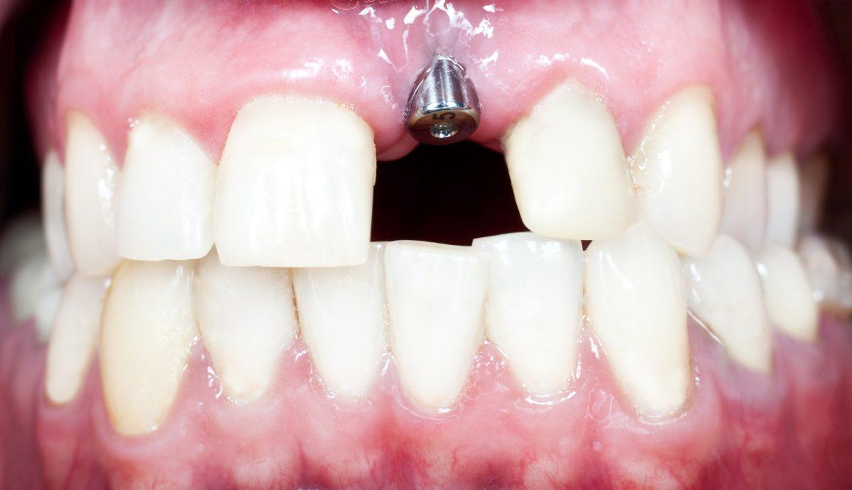 implant dentar sfaturi factori risc pierdere durata viata