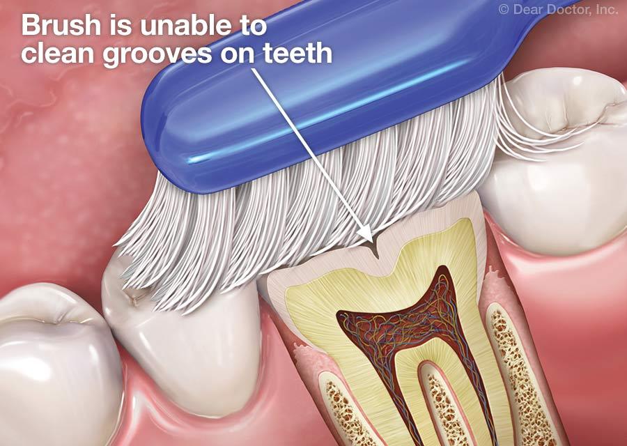 de ce este nevoie de sigilarea dentara