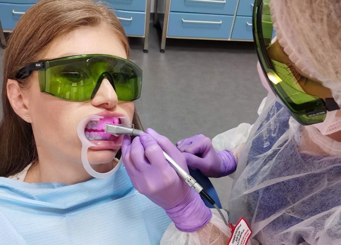 albire dentara laser